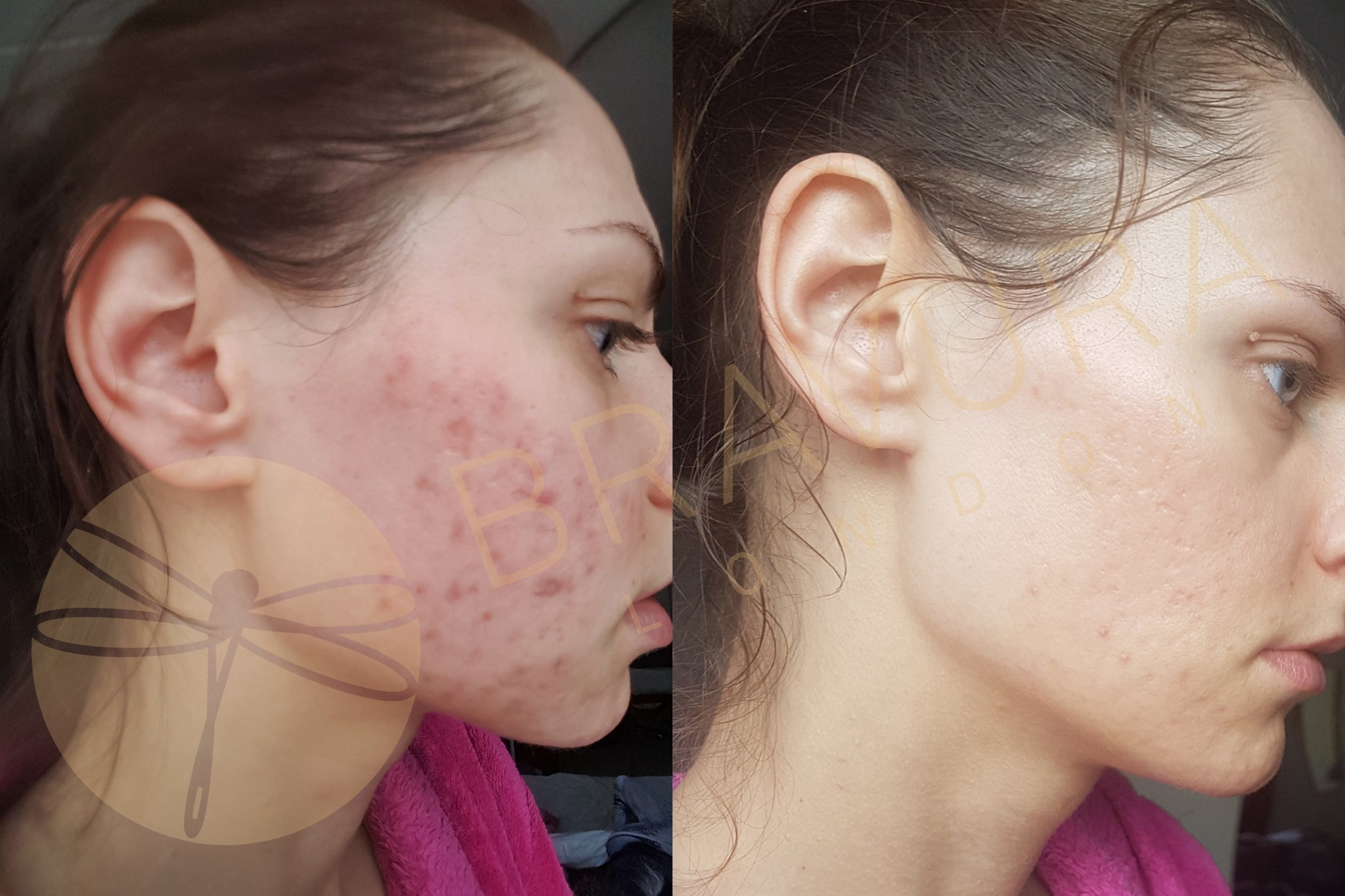 salicylic acid peel before and after pictures