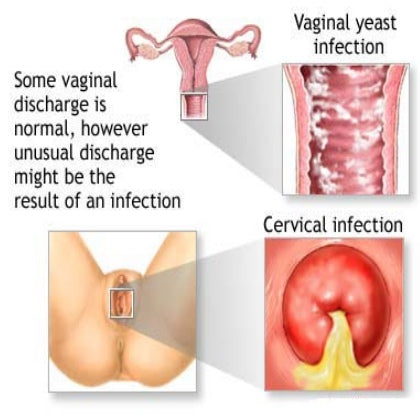 Do yeast infections smell bad