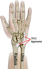 Illustration of TFCC tear, permitting the radius and ulna to spread