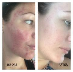 Caley T- Before & After 100% Natural Jojoba