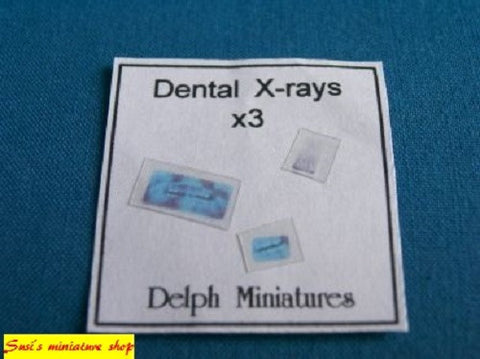 NOT REAL 1:12 dolls house miniature modern dental x-ray items 2 to choose from.
