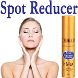 Age Spot Reducer & Preventer for Lightening & Evening Skin, Fading Spots & Acne