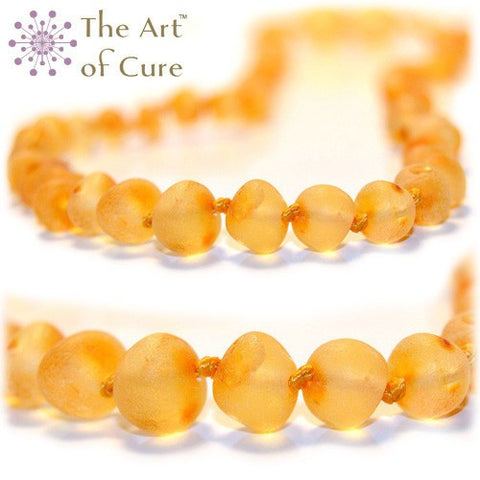(17in) The Art of Cure Baltic Amber Necklace - Raw Round Butterscotch - Anti-inflammatory