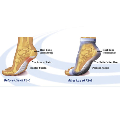 Global Footcare, FS6 Compression Foot Sleeve Socks Global Footcare