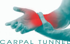 Carpal-Tunnel Treatment