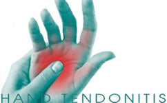Hand Tendonitis Treatment