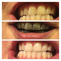 Black Activated Charcoal Toothpaste Before and After photo