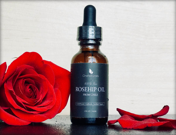 Rosehip Oil (1 oz)