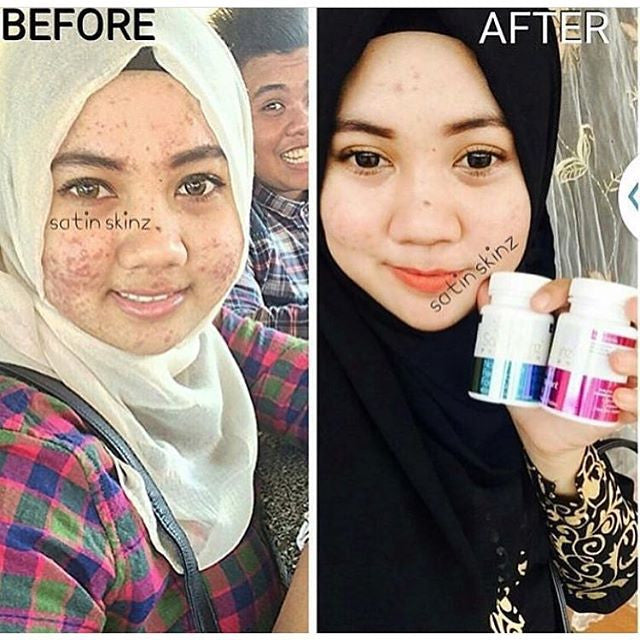 SatinSkinzGluta turn severely active acne to smoother and fairer skin!