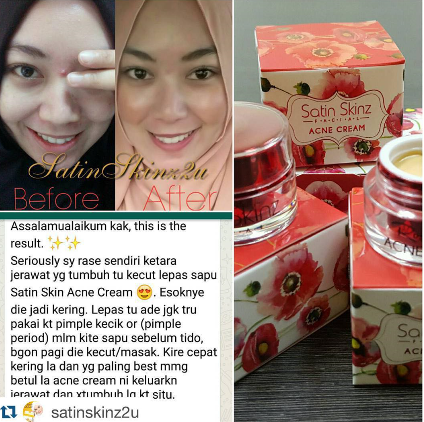 SatinSkinzacnecream has four actions