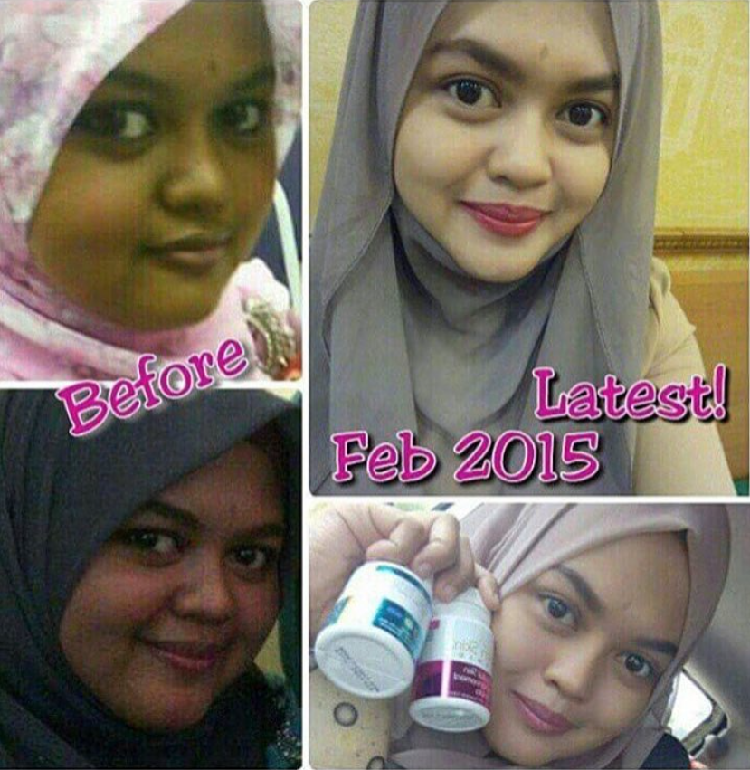 Satinskinzpremium changes in skin tone so 5x whitening