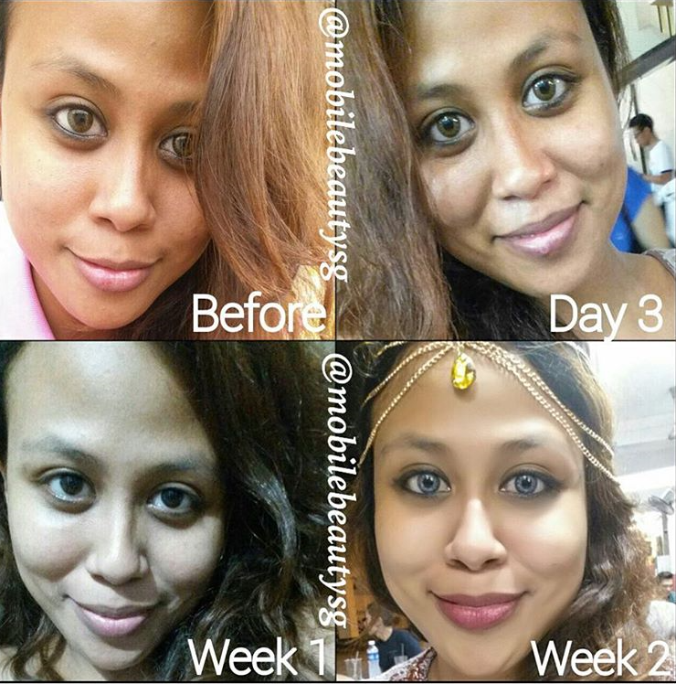 Only two weeks of Satin skinz premium her skin tone has completely evened out!