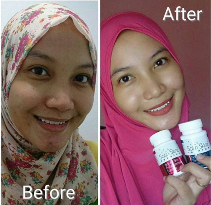 Satin Skinz Premium for the one who want EXTRA white, pinkish, clear of all acne