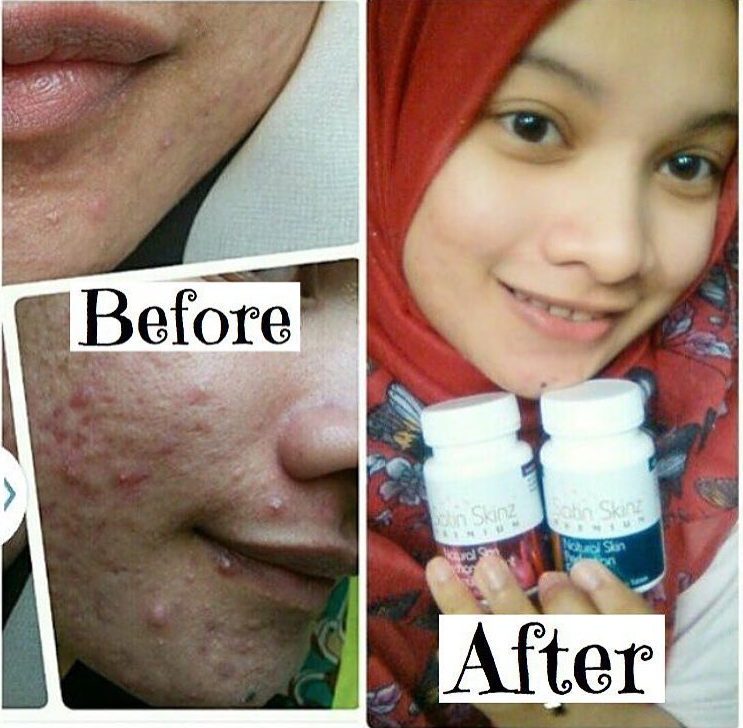 Satinskinzpremium inhibit the formation of acne