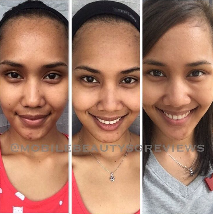See the changes: Cleanser, Serumacne, satinskinzpremium