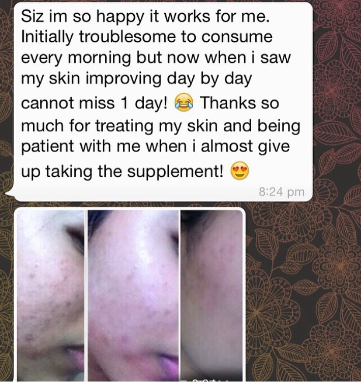 How amazing is this ? satinskinzpremium