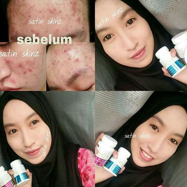 Eliminates all your skin problem with satinskinzpremium
