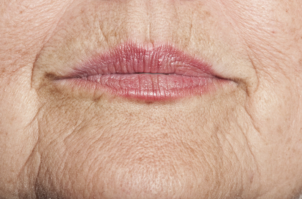 WRINKLES: THE CAUSES AND TREATMENT