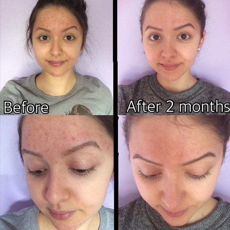 Timeless Acne Cleanser