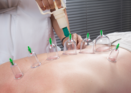 practitioner using vacuum cupping