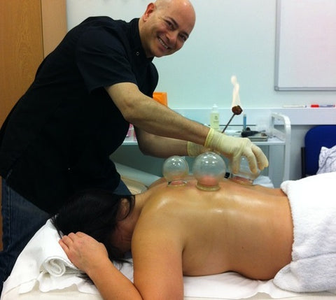 physical therapist performing dry cupping session