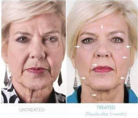 New Nu Skin Facial Spa