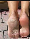 Sole Solution Foot Treatment