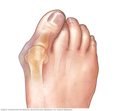 Foot care to prevent bunions