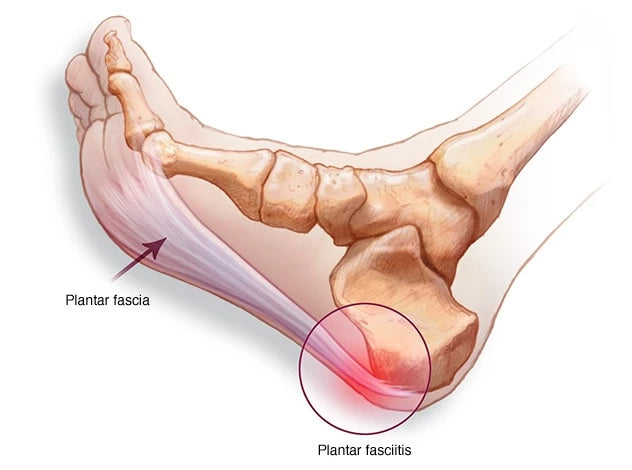 What is plantar fasciitis photo from the Mayo Clinic