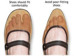 Photo showing what is a toe box in shoes