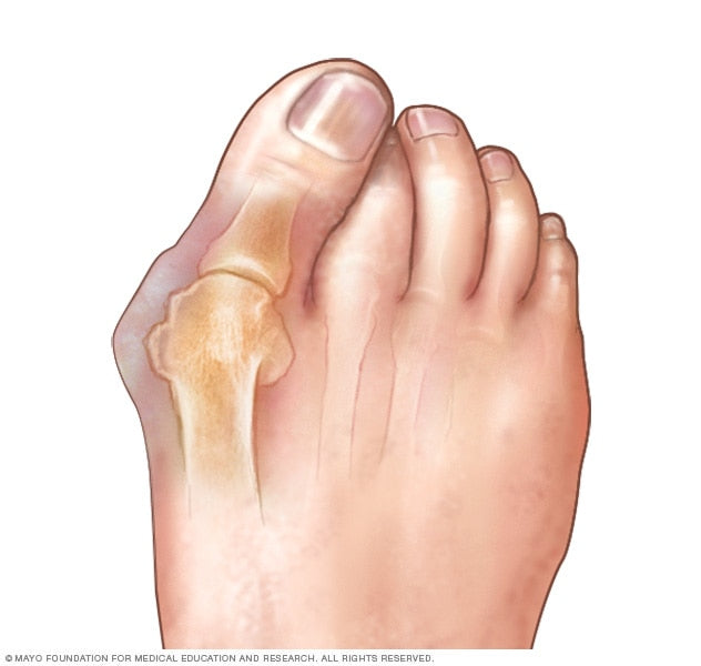 What is a bunion photo from the Mayo Clinic