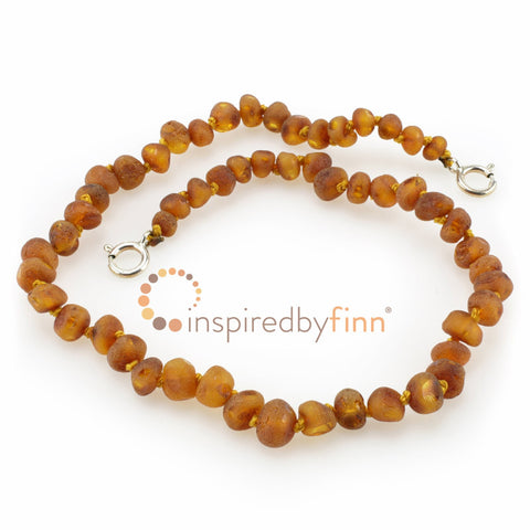 Inspired By Finn Baltic Amber Adjustable ANKLET/BRACELET
