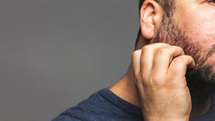 Beard Itch - How To Treat It