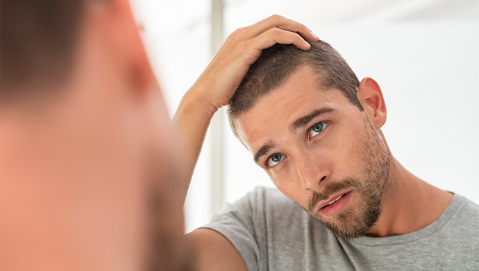 6 Tips on How to Reduce Hair Loss in Men