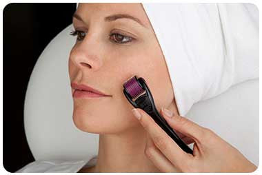Step 1 <br /> Use The Derma Roller