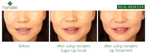 Hanalei Sugar Lip Scrub and Lip Treatment Before and After Pictures