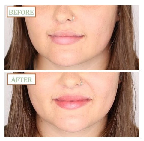 hanalei lip treatment before and after
