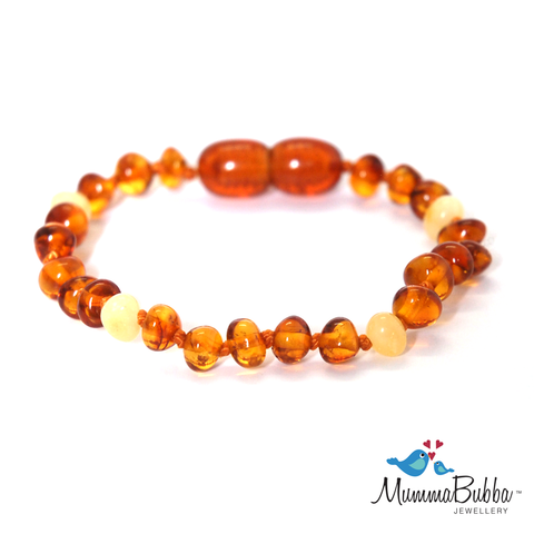 Baltic Amber Anklet Cognac and Butter