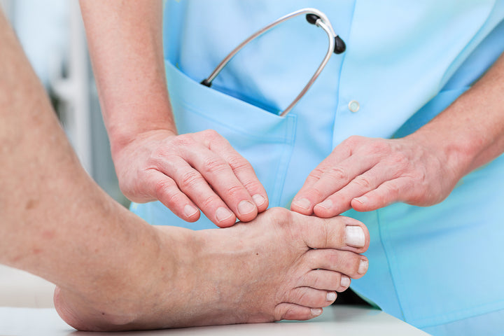 5 Tips for Reducing Bunion Pain