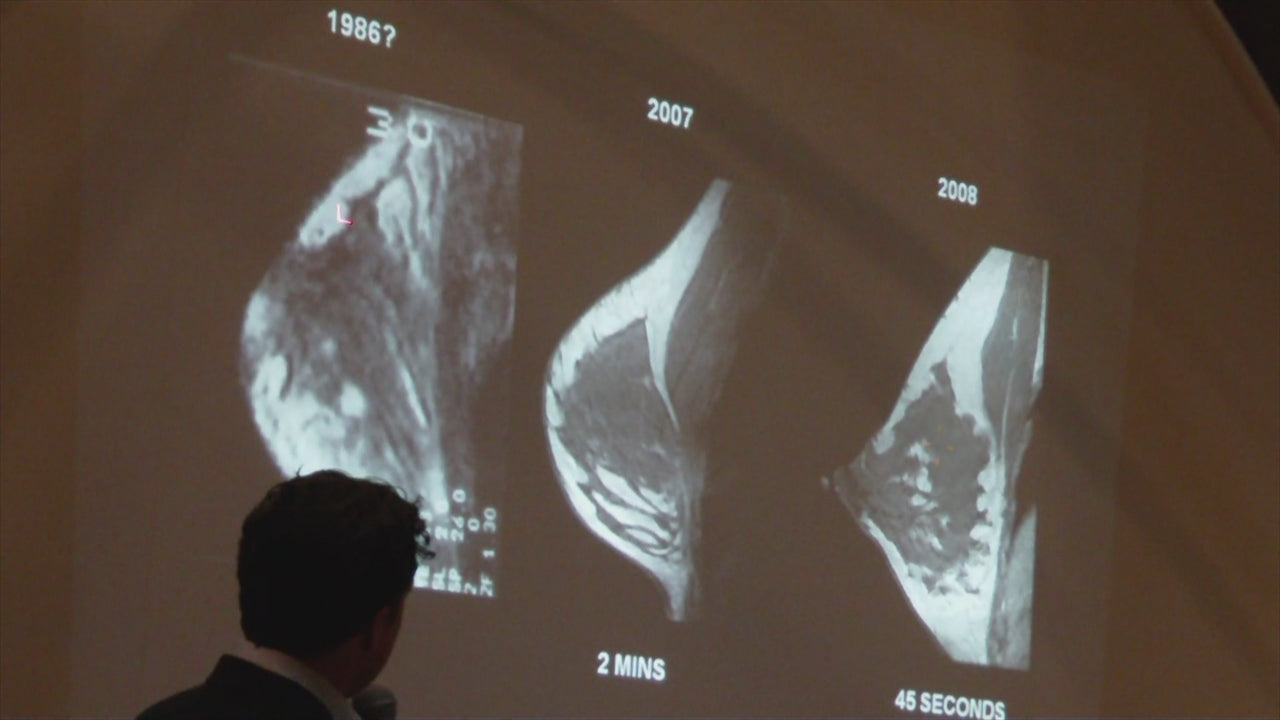 MRI image improvement