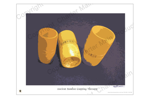 Poster-Three ancient bamboo cups-history-evolution-cupping therapy