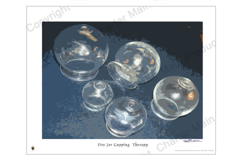 Poster-Five Glass Fire Jar Cups-History-Evolution-Cupping Therapy