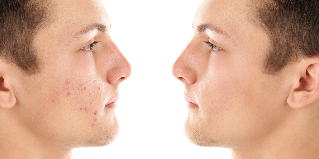 Acne Scars and Dark Spots: Causes and Remedies