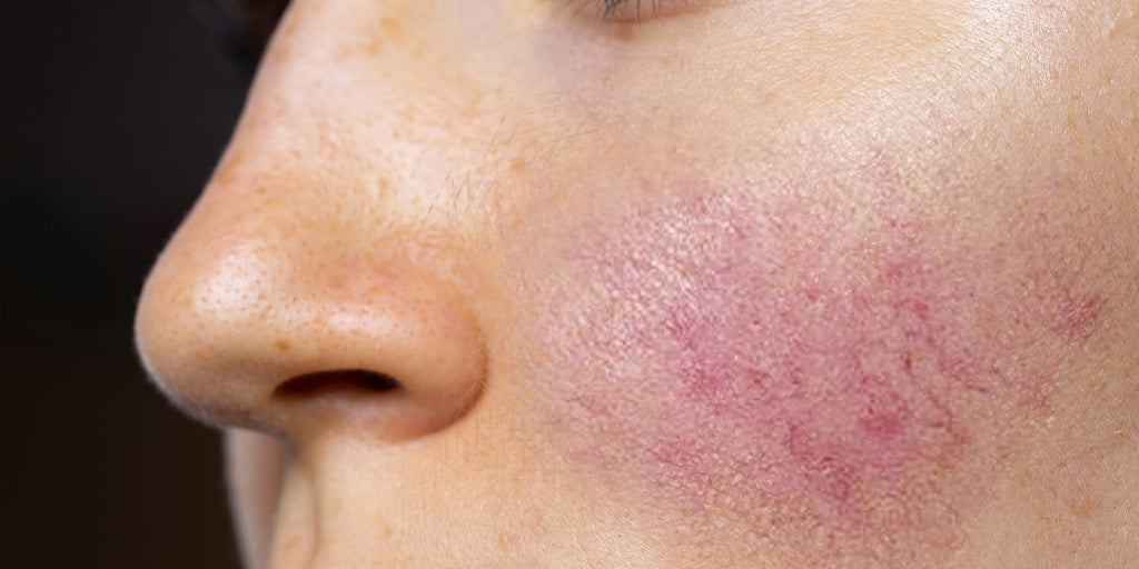 Rosacea: What To Avoid & The Best Derm-Approved Treatments