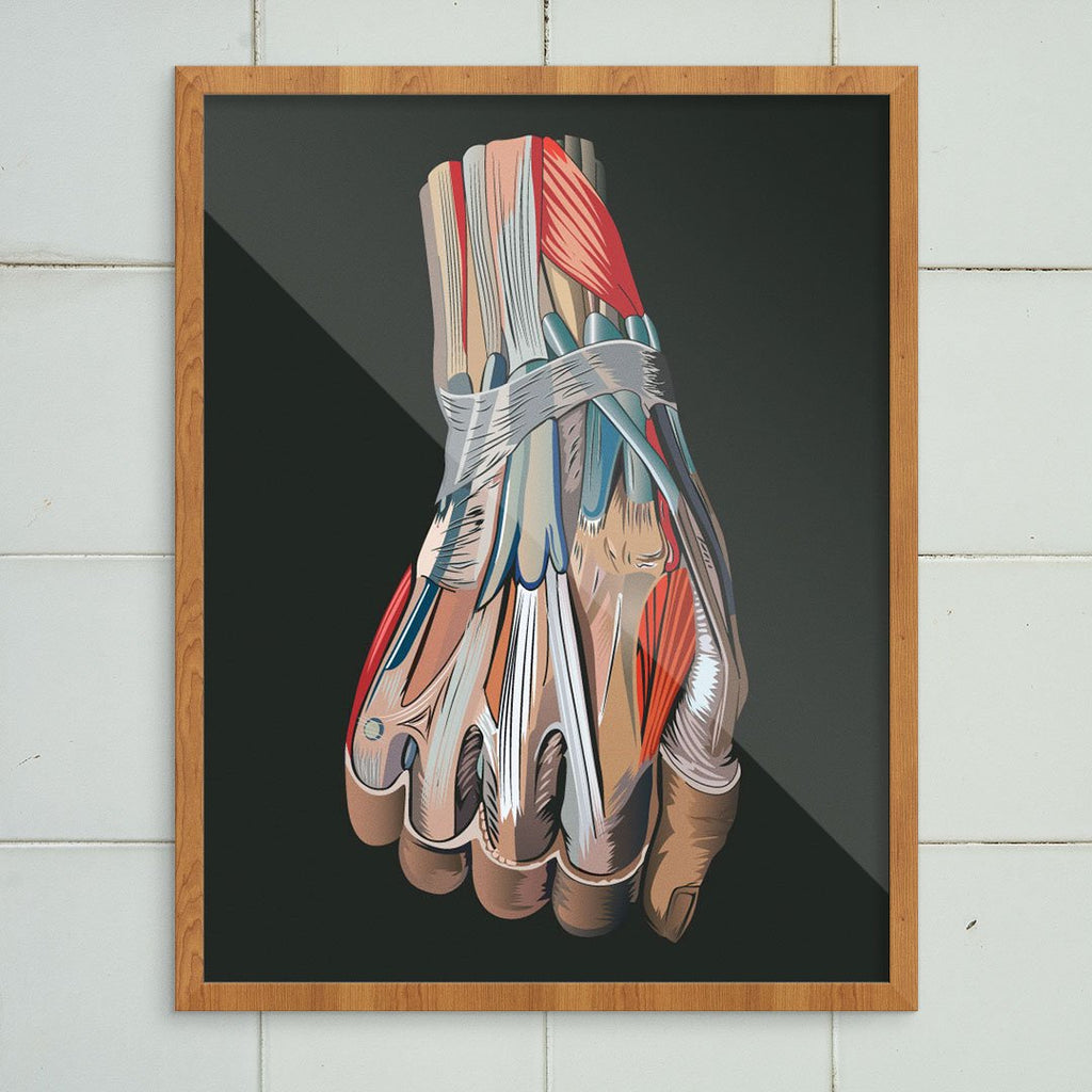 Hand Medical Diagram Print