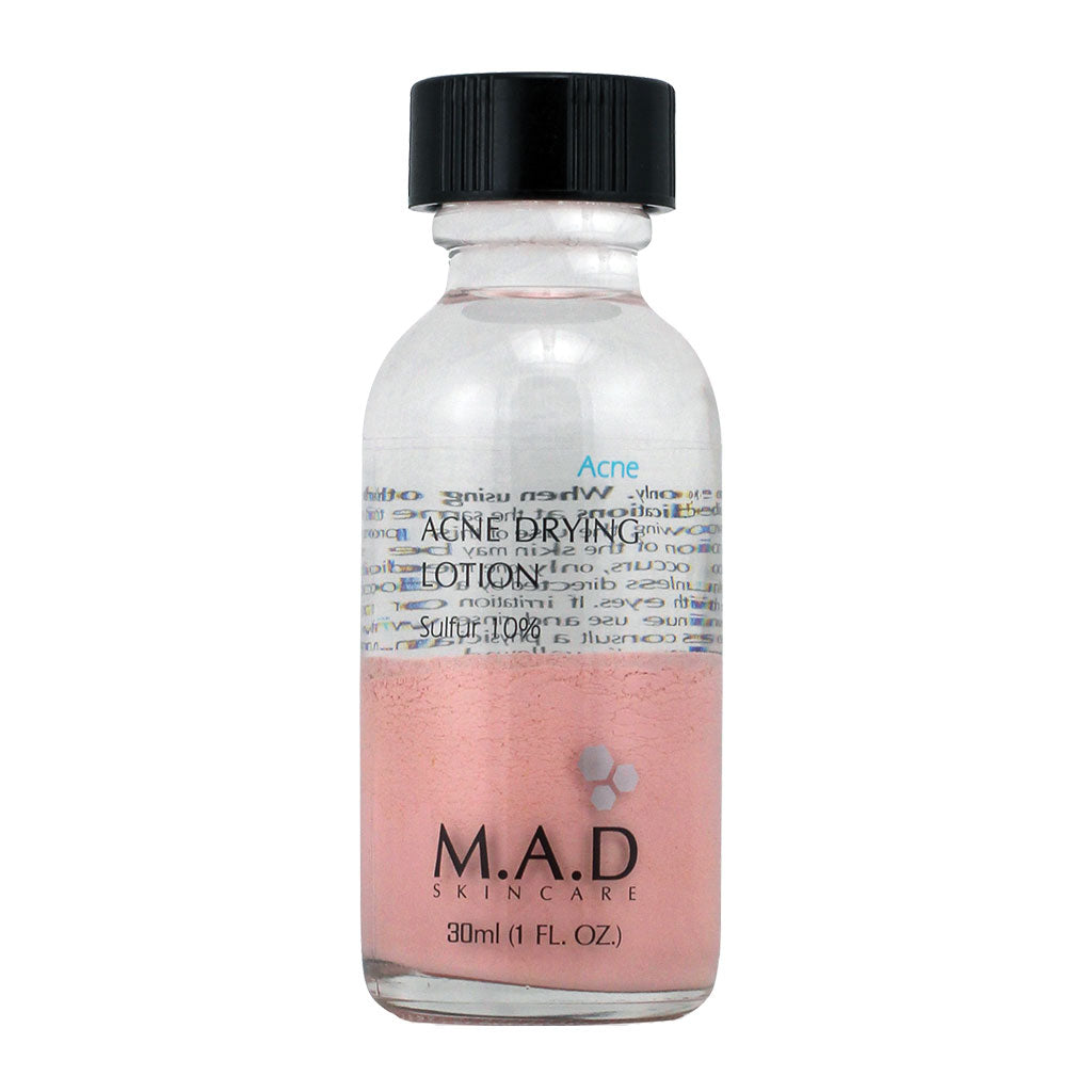 M.A.D. SkinCare. Acne Drying Lotion Sulfur 10%, tratamiento nocturno para combatir espinillas. 30 ml