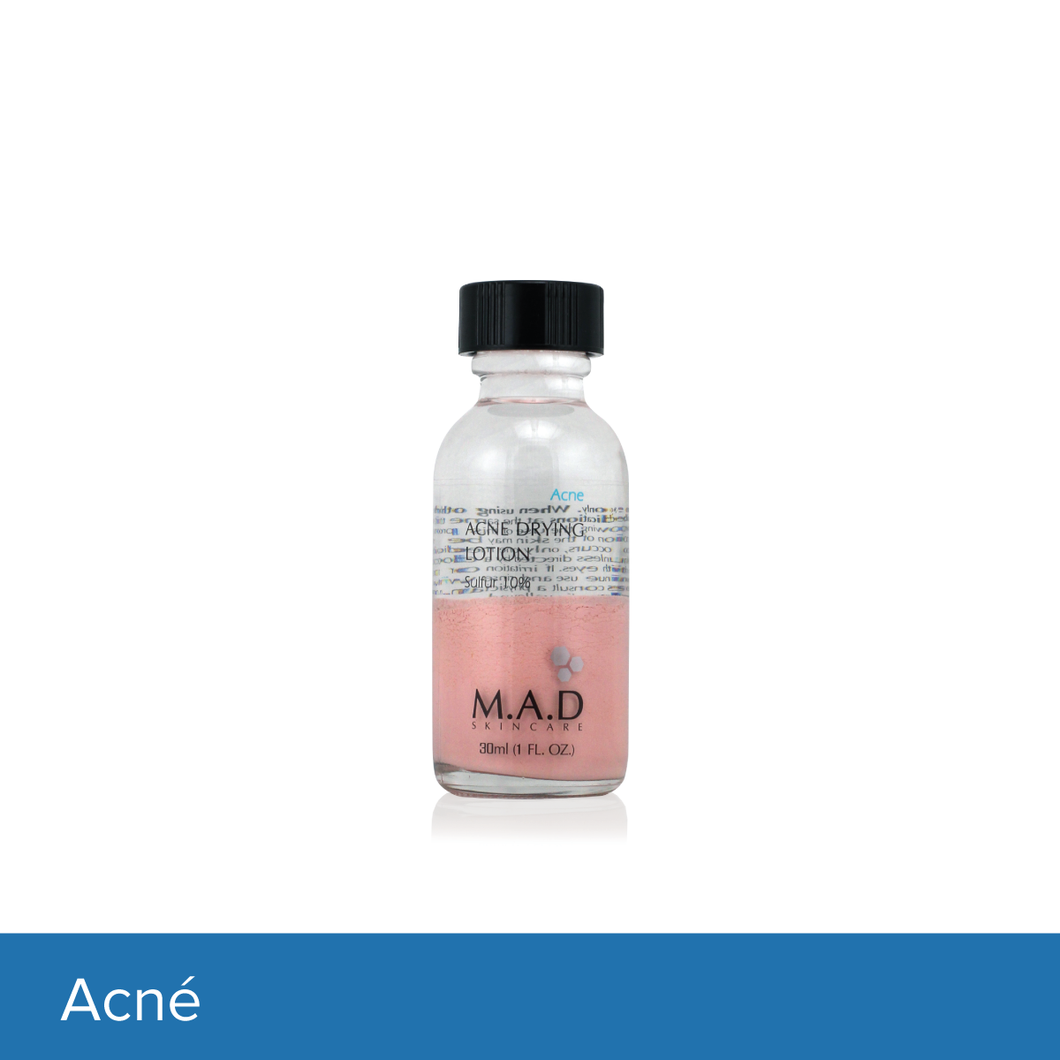 Acne Drying Lotion Sulfur 10%, tratamiento nocturno para combatir espinillas.