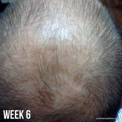 Client at six weeks