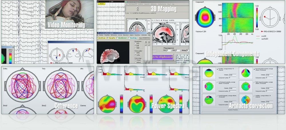 Your One Stop Shop for Leading Edge Brain Diagnostic Equipment, Training & Assessment