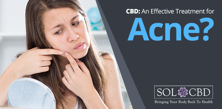 CBD Oil for Acne: Benefits That Will Blow Your Mind